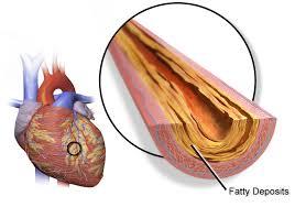 Heart Coronary