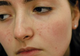 The Top 3 Natural Remedies For Dealing With Pimples