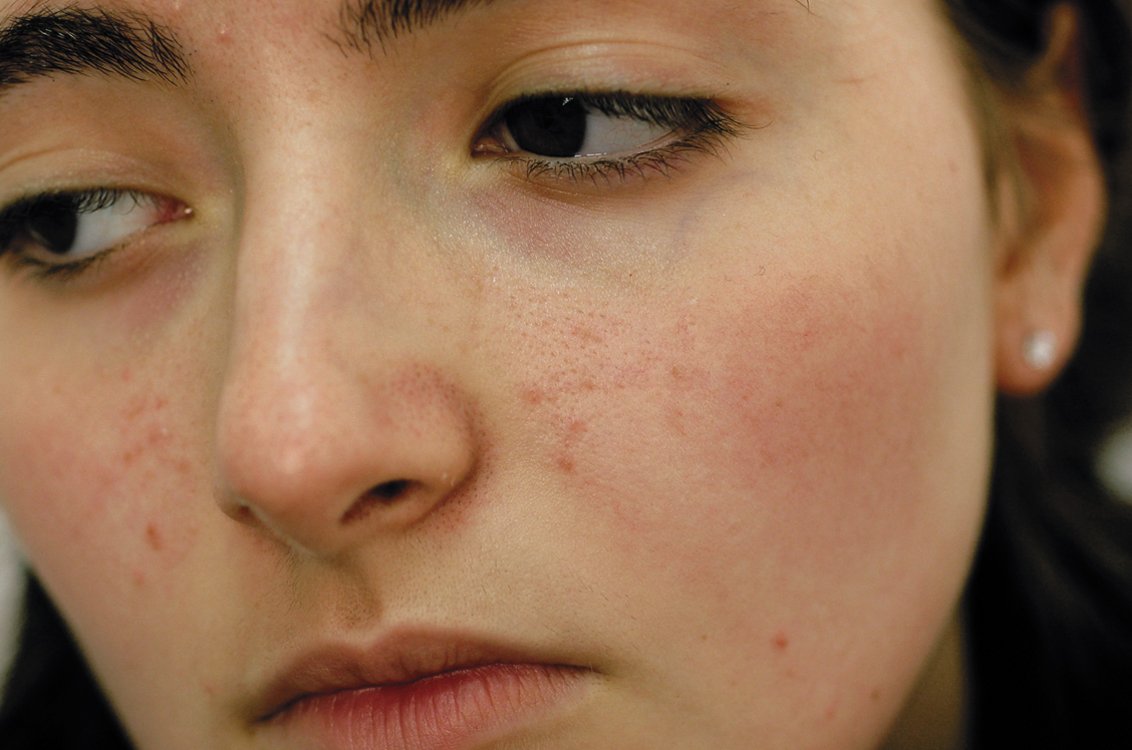 how to lose pimples naturally