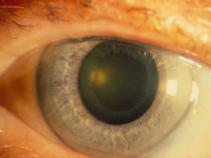 5 Major Eye Problems Diabetes Could Cause | Trainer