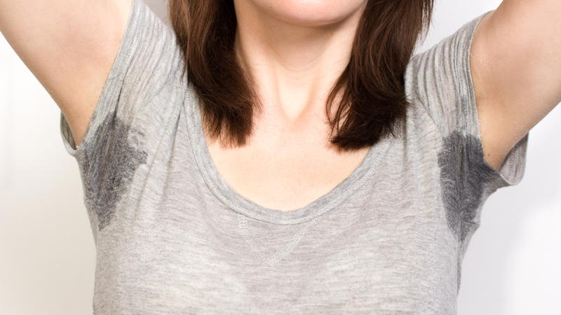 5 Ways To Prevent Hyperhidrosis