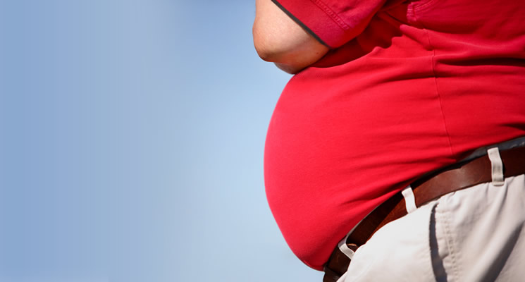 3 Most Common Misconceptions About Obesity