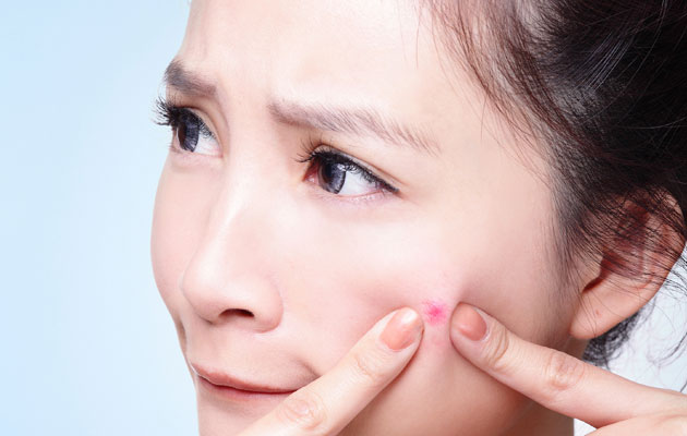 5 Easy Ways To Prevent Pimples