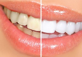 Natural Ways To Keep A Whiten Teeth And Odourless Mouth
